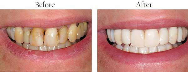 Irvington Before and After Teeth Whitening