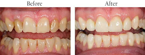 Warren Park Before and After Teeth Whitening