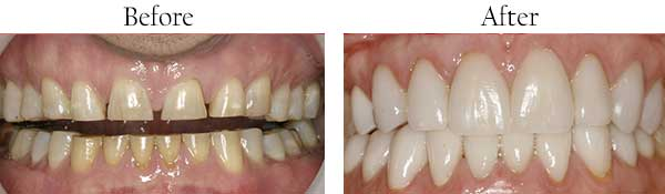 Indianapolis Eastside dental images